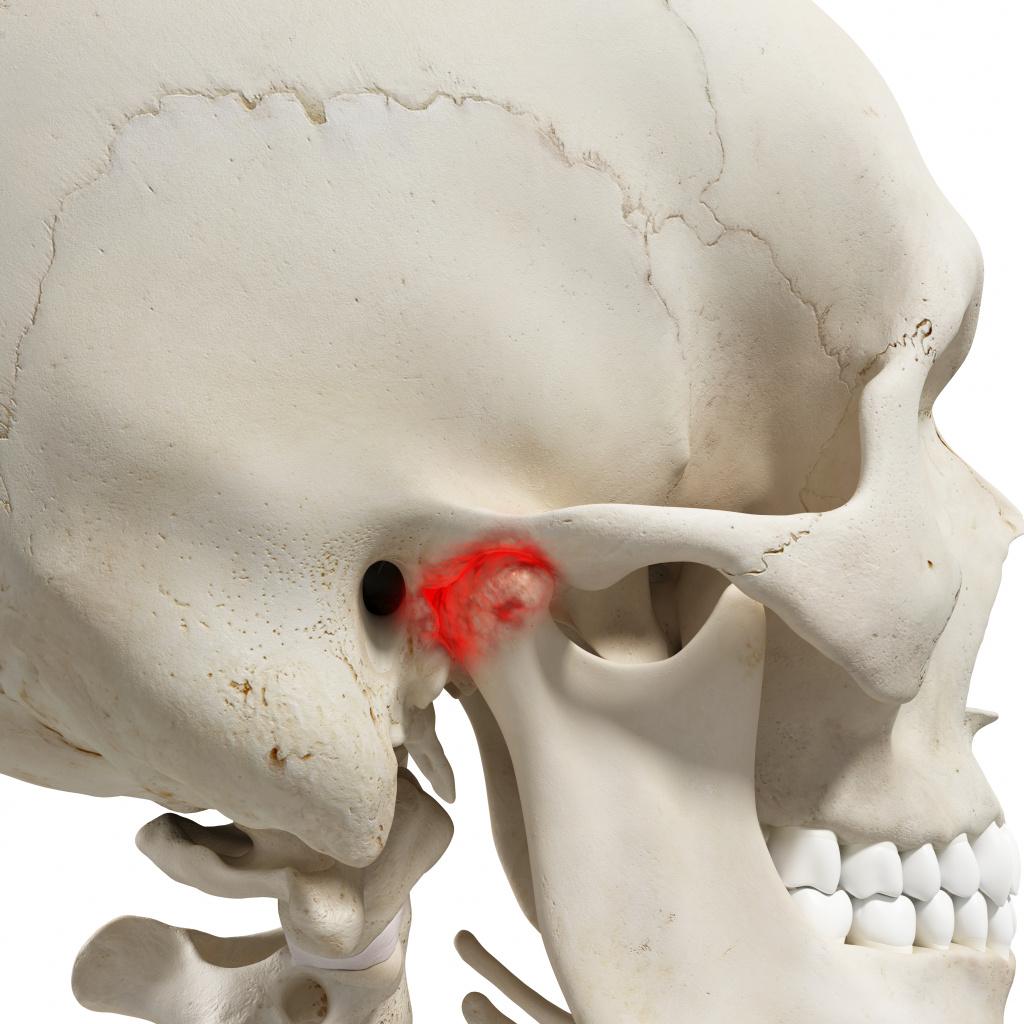 Почему болят мышцы на голове и лице thumbnail
