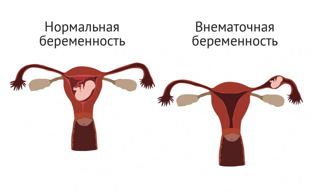 Внематочная беременность.jpg