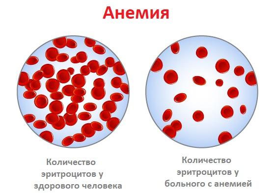 Анемия.jpg