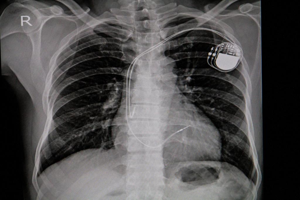 Имплантация кардиостимулятора.jpg