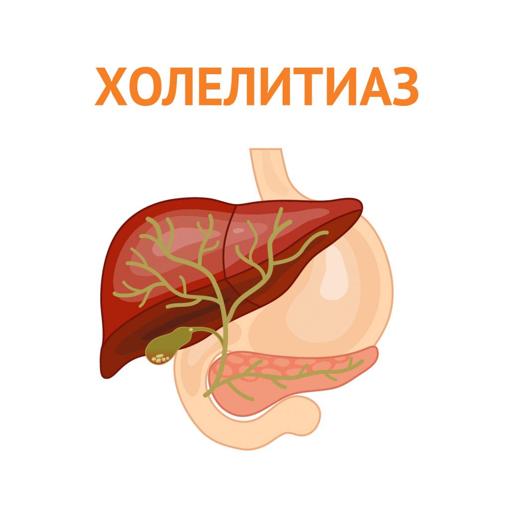 желчнокаменная болезнь.jpg