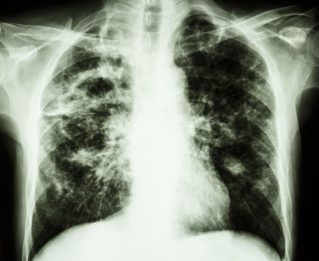 Рентгенограмма органов грудной клетки пациента с туберкулезом и распадом легочной ткани, лучше всего видно в правых верхних отделах.jpg