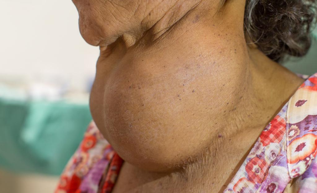 увеличенная щитовидная железа.jpg